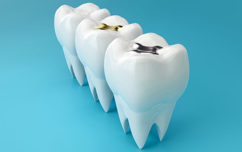 about tooth fillings
