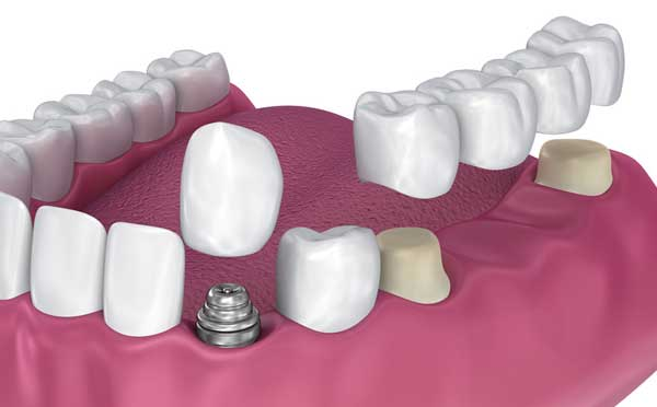 care dental implants