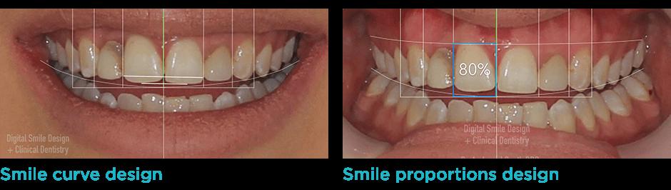 Digital Smile Design Dsd South Plympton Sa