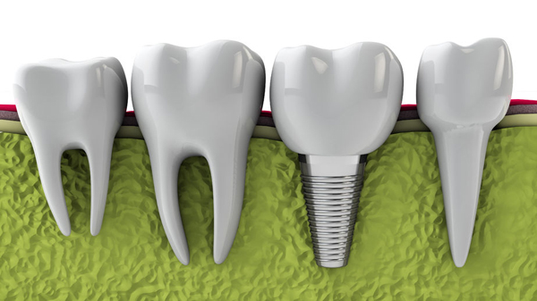 Dental Implants Help In Gum Disease