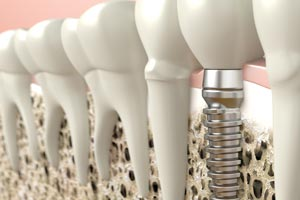 dental implants south plympton