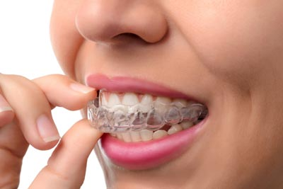 Invisalign south plympton